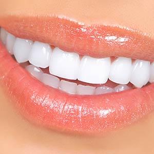 smile1a300x